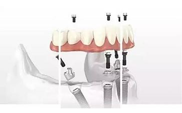 种植牙的治疗需要多长时间