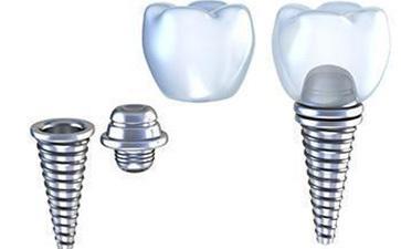 种植牙可以核磁共振吗?