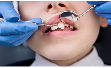 儿童牙齿矫正术后保健