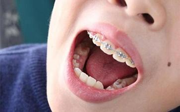 如何预防儿童牙齿畸形