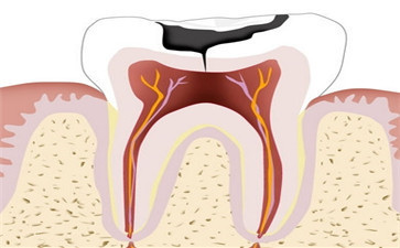 3M树脂补牙和纳米补牙的区别