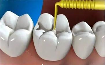 补牙会导致牙髓炎吗