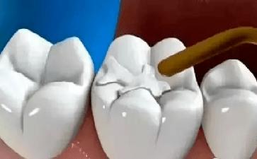 医学科普补牙前你需知道的事