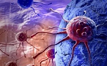 病症分析中西医治疗肿瘤有哪些优势