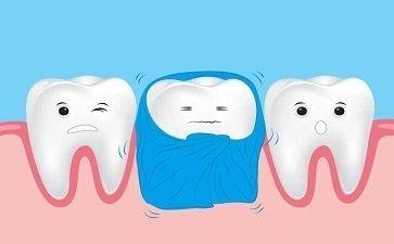 补牙之前,需要注意些什么